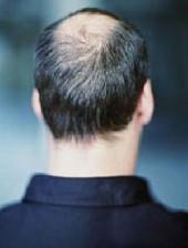 آیا ریزش مو با استرس رابطه دارد؟