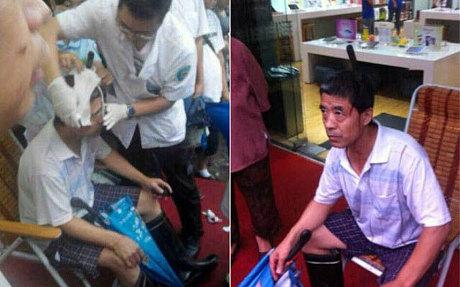 مردی با یک چاقوی 13 سانتی در سرش در خیابان!+عکس