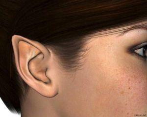 عمل زیبایی گوش خری