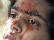 دختر عجیب هندی که به جای اشک خون گریه می کند! عکس