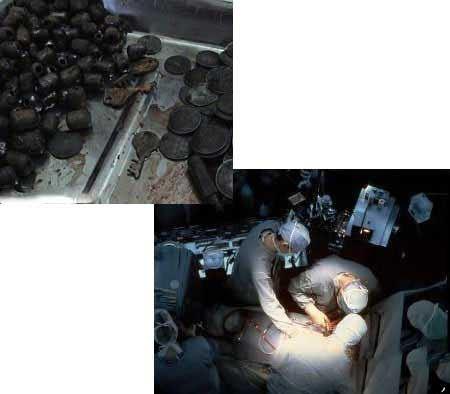 مردی که 7 کیلو آهن را خورد ولی زنده ماند! عکس