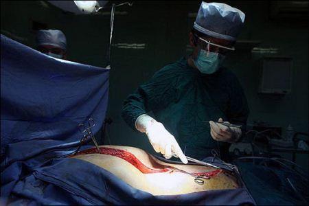 عکس های دیدنی و کمیاب پیوند اعضای بدن در اتاق عمل