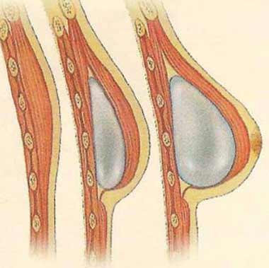 راه های بازسازی پستان بعد از درمان سرطان سینه