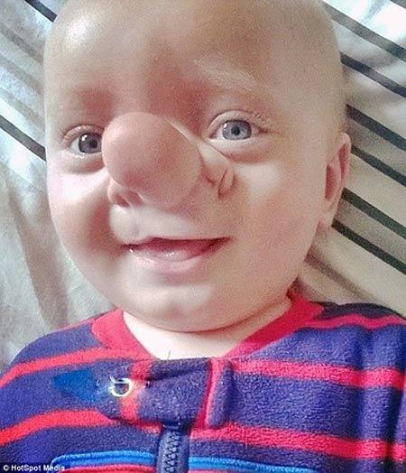 کودک پینوکیویی مغزش در دماغش رشد کرده است (عکس)
