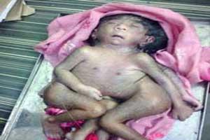 خدای جدید هندی ها نوزادی با 8 دست و پا (عکس)