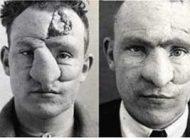 کسی که اولین بار در دنیا زیر تیغ جراحی رفت (عکس)