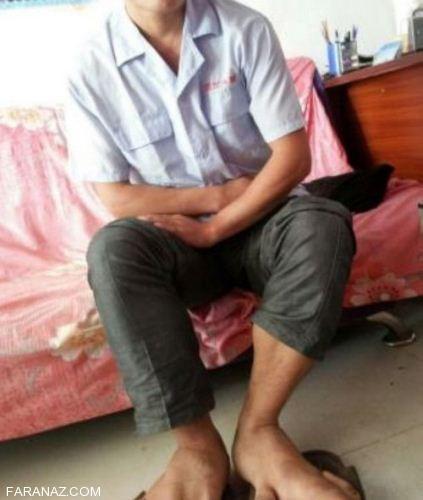 پسری با عجیب ترین پاهایی که دارد (عکس)