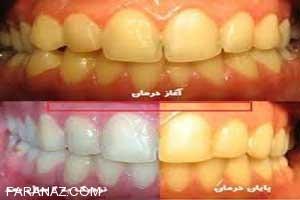 علت زردی دندان چیست؟