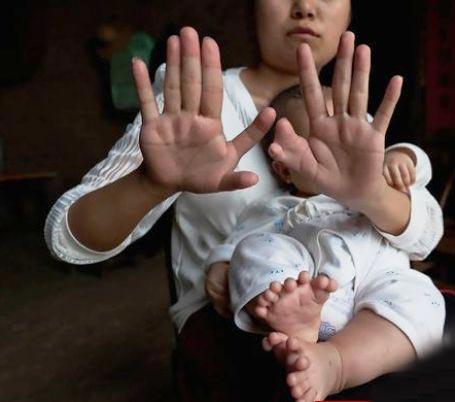 تصاویر نوزادی که 31 انگشت دارد