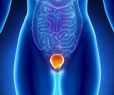 عفونت ادراری واژن زنان (علائم،پیشگیری،درمان)