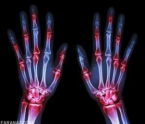 آرتریت روماتوئید چیست؟ علائم و درمان آرتریت روماتوئید