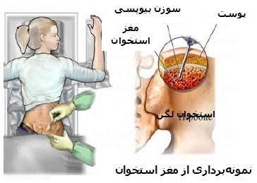 روش های درمانی سرطان استخوان
