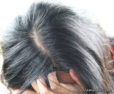 آشنایی با بهترین راه های رفع سفیدی مو