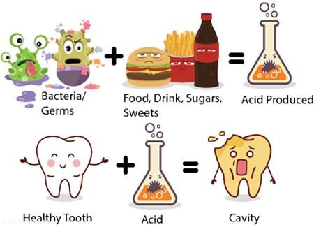 پوسیدگی دندان و راه های جلوگیری ازآن