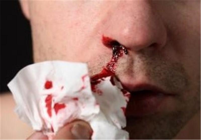 خون دمان شدن و دلایل مختلف آن