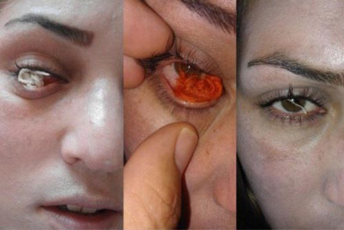 زنی در اردبیل که چشمانش منبع نخ است!!!!