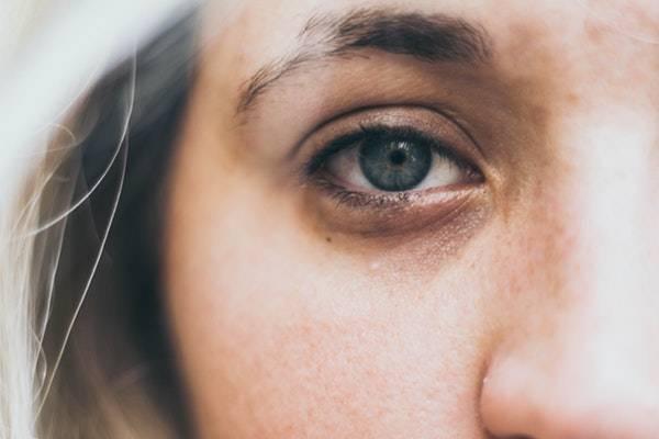 علت سیاهی دورچشم +درمان