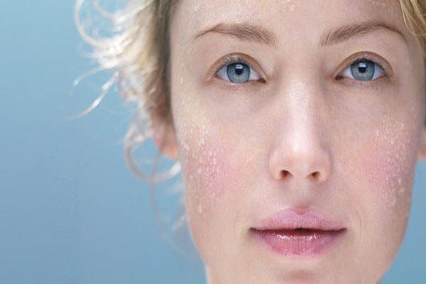 جلوگیری از خشکی پوست در فصل سرما