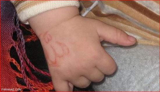 ظاهر شدن آیات قرآن روی بدن این نوزاد + عکس