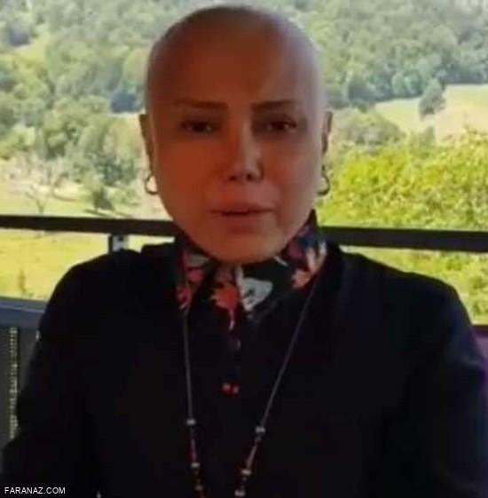 حمایت سوسن پرور از شراره درشتی با تراشیدن موهایش + عکس