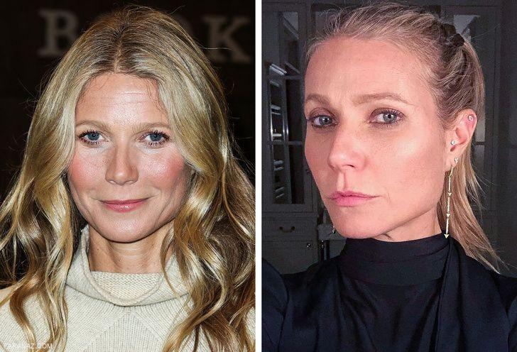 اعتراف افراد مشهور به عمل جراحی زیبایی + عکس