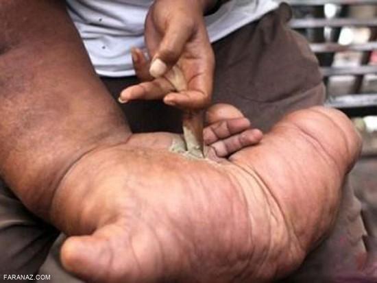 جوان هندی و دستی که شبیه به دست فیل است + عکس