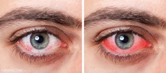 خشکی چشم و راه های درمان آن