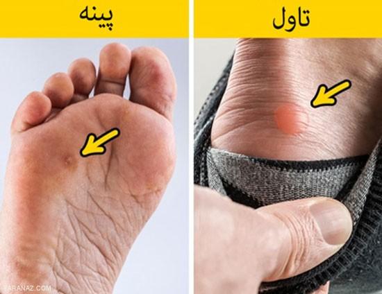 همه چیز درباره ی تاول وپینه پا و راهکارهای درمانی آن