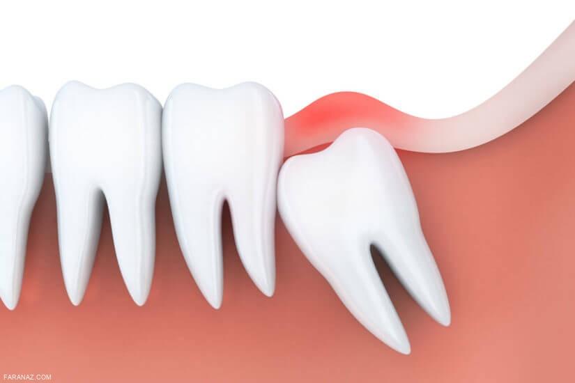 مناسب ترین زمان برای کشیدن دندان عقل چه زمانی است؟