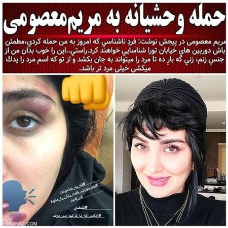 ماجرای حمله فرد ناشناس به مریم معصومی و ضرب و شتم او + عکس