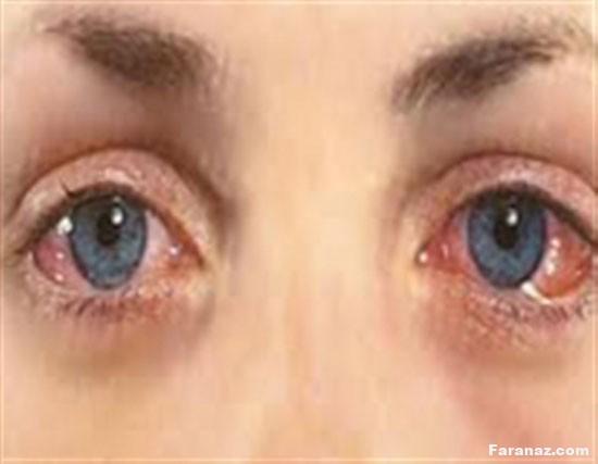 سلامت چشمتان را با خوردن این دارو ها به خطر نیندازید
